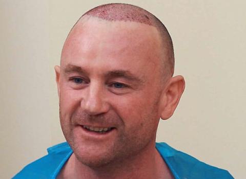 Kieron's Hair Transplant Result