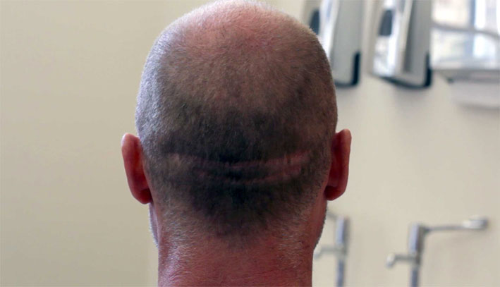 Hair scar repair