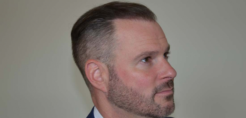 """""""It's quite extraordinary… it's a miracle!"""" – Kevin's Hair Transplant story"""