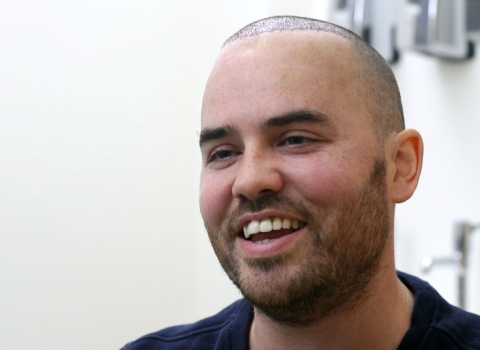 Jonathan Saccone Joly's Hair Transplant Result