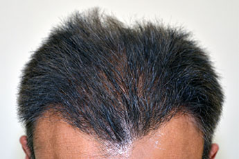 Anil's Hair Transplant Result