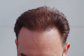Damian's Hair Transplant Result