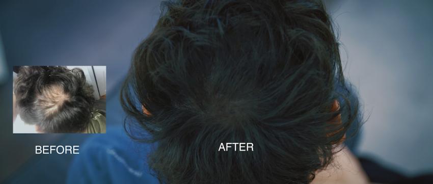 Advanced Tricho Pigmentation: The results