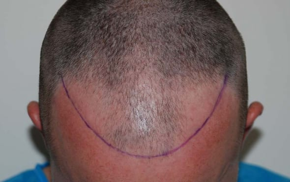 Before Hair Transplant