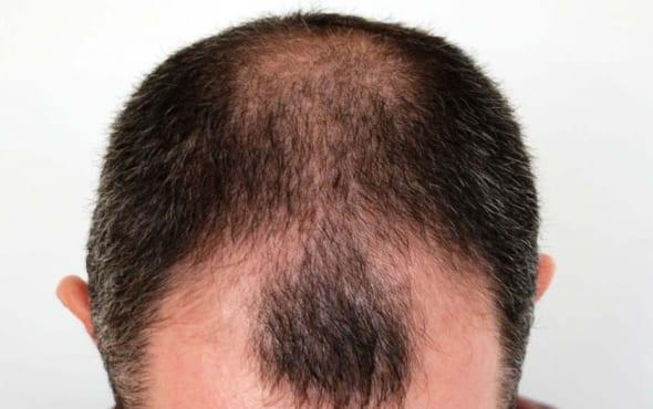 Before Hair Transplant