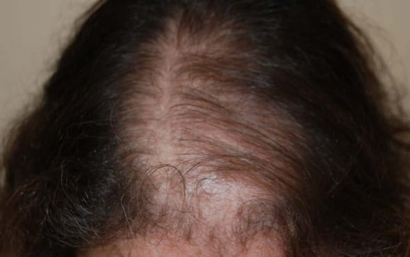 Before Hair Transplant Woman