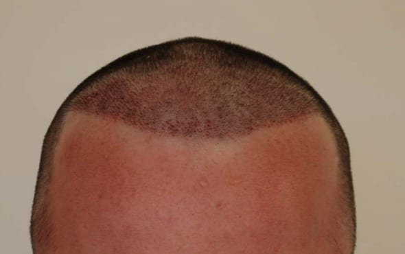 hair transplant