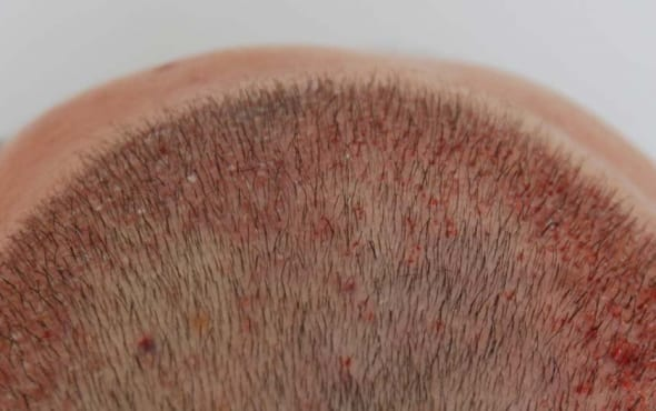 hair transplant result uk