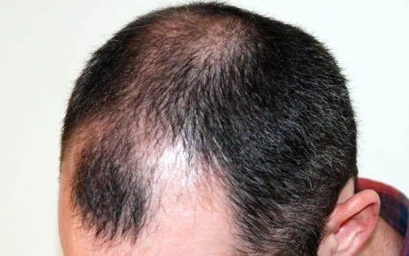 hair transplant uk