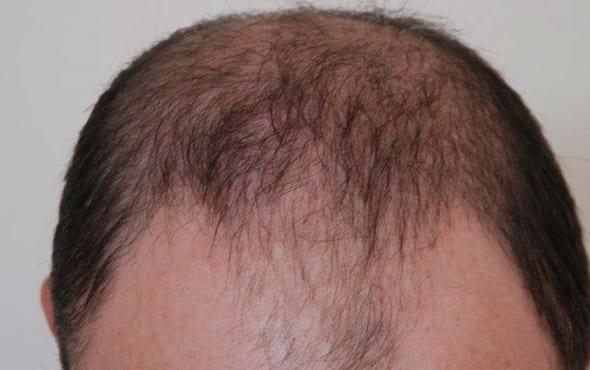 Harley street hair clinic hair transplant