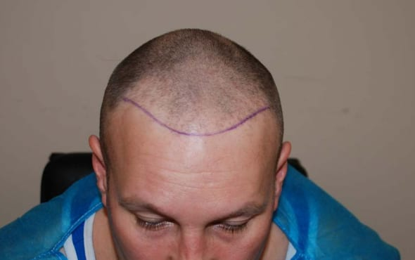 make pattern baldness