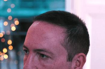 Hair Transplant Results