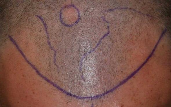 Steven Fletcher Hair Transplant