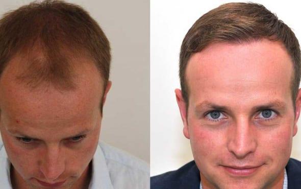 hair transplant result