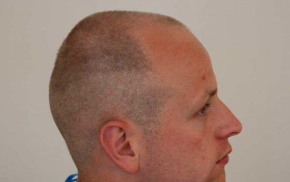 pattern hair loss