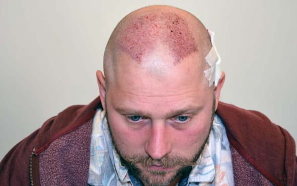 Mike Taylor Hair Transplant After