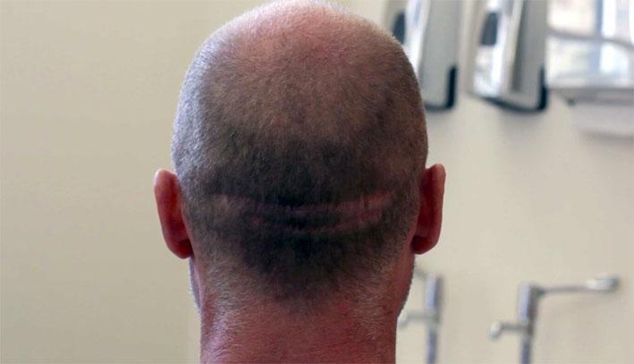 fue scar repair