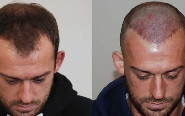 Steven fletcher hair transplant result