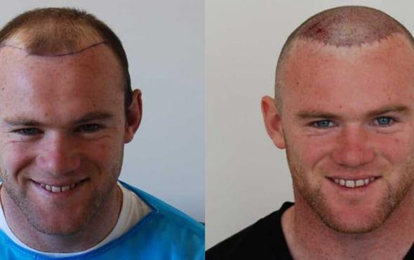 Wayne Rooney hair transplant result
