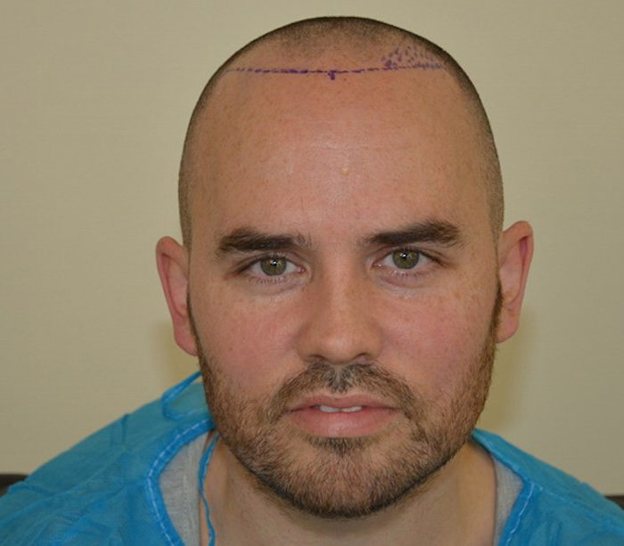 Jonathan Joly's hair transplant journey
