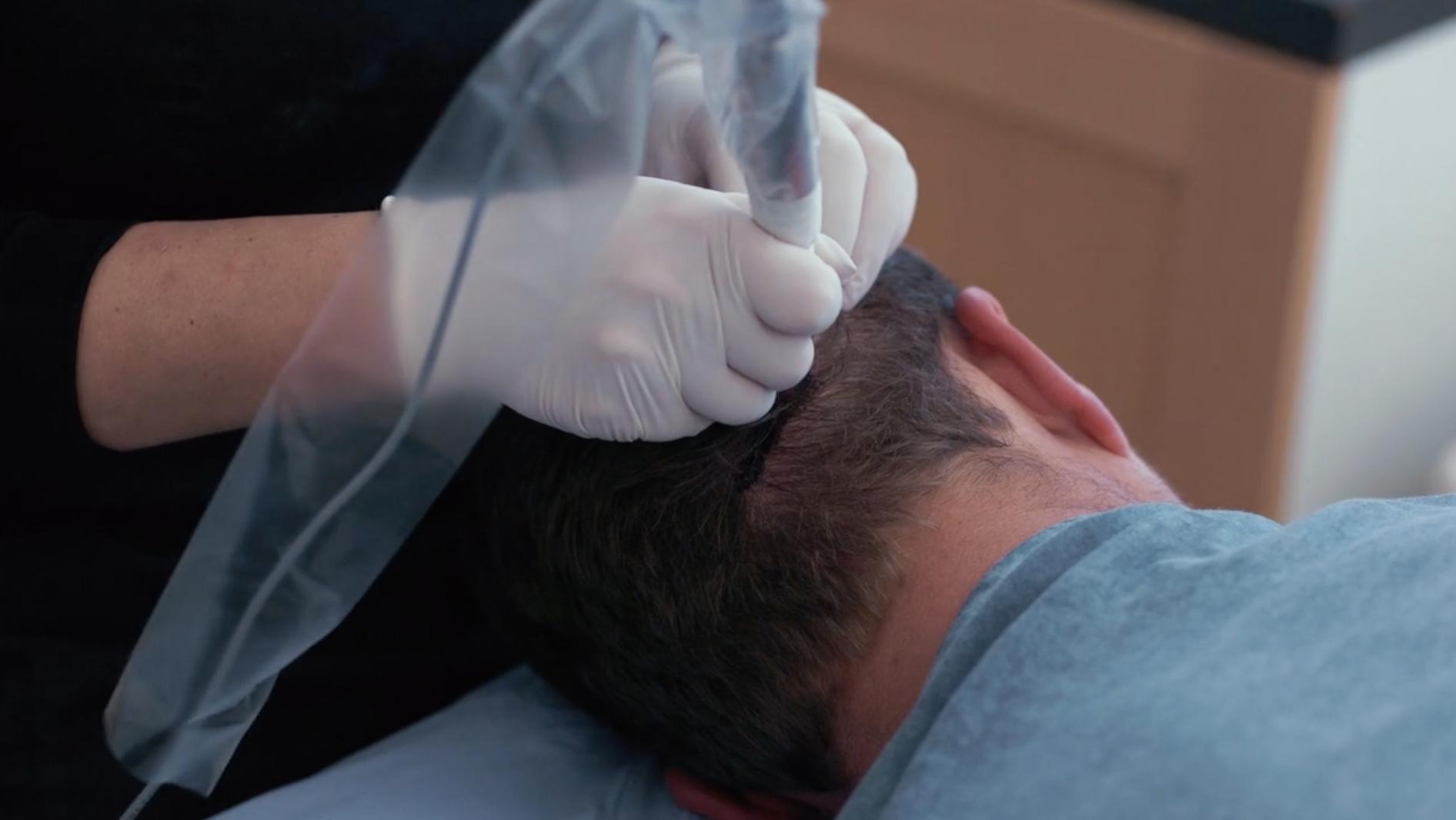 Man Getting Hair Transplant At Back Of Head