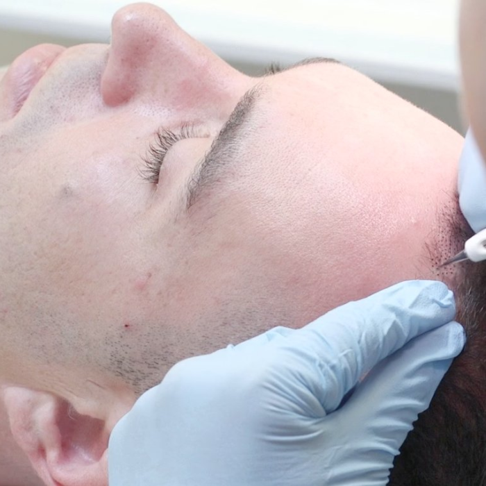 FUE hair transplant or ATP (Advanced Tricho Pigmentation)