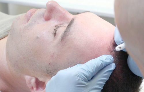 Man In Mid Hair Transplant Procedure