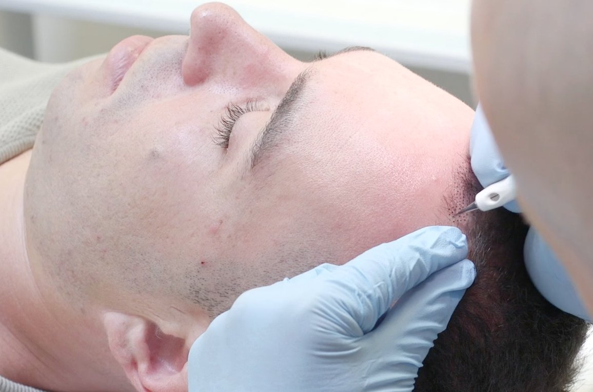 Man in Mid Hair Transplant Procedure