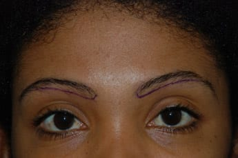 eyebrows reconstruction