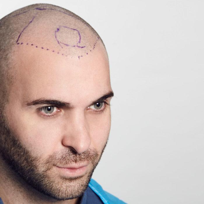 Ed's hair transplant story