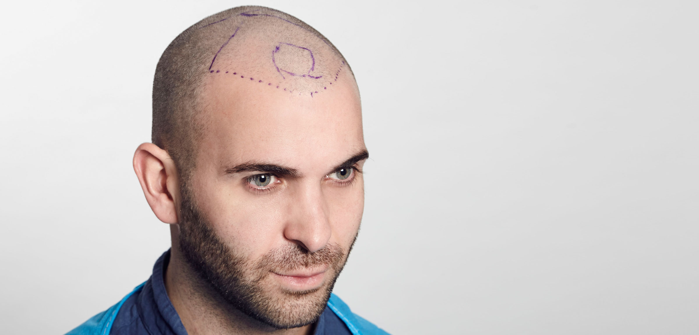 Man with Hair Transplant Mapped Out