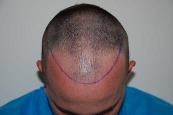 hair transplant consultation