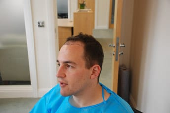 hair transplant Harley street hair clinic