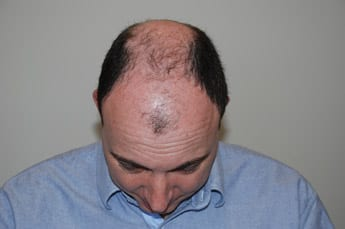 male hair loss