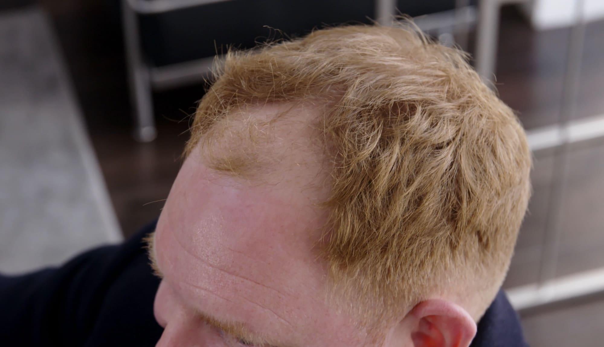 Ben Before Hair Transplant