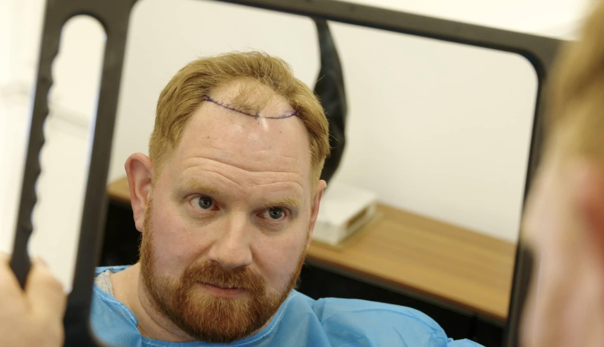 During Hair Transplant