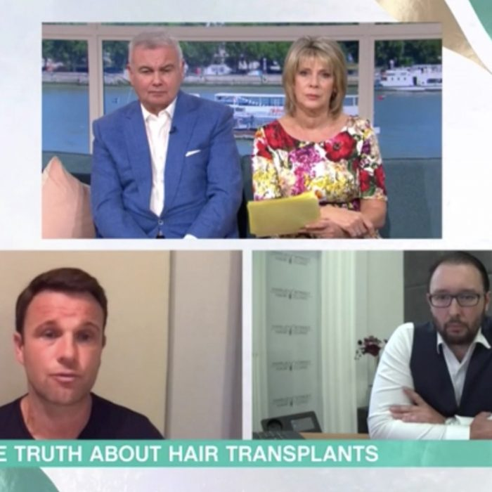 The importance of researching your Hair Transplant Clinic