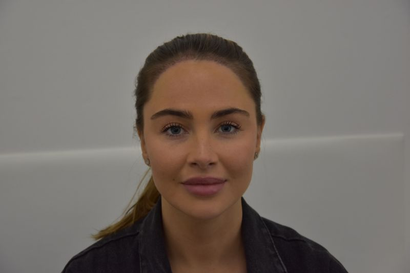 Johanna's hair transplant results