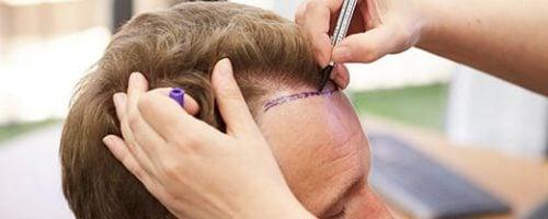 HSHC Spex Hairtransplant